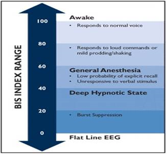 http://www.ispub.com/ispub/ijnm/volume_4_number_1_32/the_effect_of_acupressure_on_the_bispectral_index_and_entropy_parameters_in_mentally_handicapped_humans_a_pilot_study/acubis-fig1.jpg